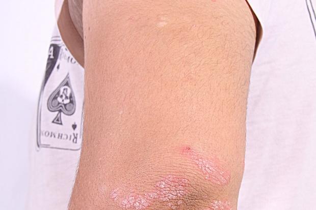 Składnik wanilii może łagodzić zmiany skórne u chorych na łuszczycę