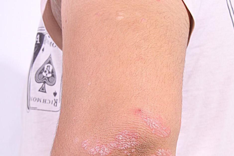 Eksperci: łuszczyca to poważna choroba, która dotyczy nie tylko skóry