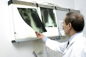 Chorzy na idiopatyczne włóknienie płuc uzyskali dostęp do leczenia