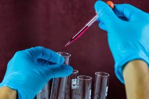 Kto szkodzi diagnostyce laboratoryjnej?