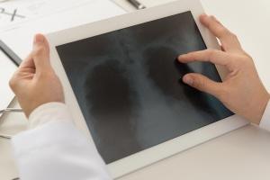 Powstało Forum Raka Płuca