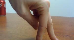 Eksperci: skutki przewlekłego wyprysku rąk są nadal lekceważone