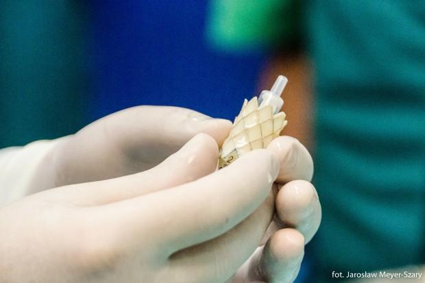 Gdańsk: kardiochirurdzy z UCK uratowali serce wykorzystując druk 3D