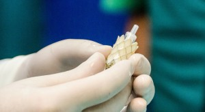 Belgia: powstanie pierwszy w UE krajowy rejestr implantów