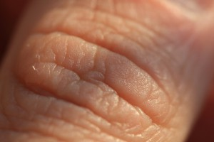 Badania: przyjazne bakterie mogą chronić przed rakiem skóry
