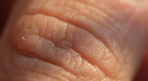 Atopowe zapalenie skóry to choroba całego organizmu, trzeba je leczyć kompleksowo