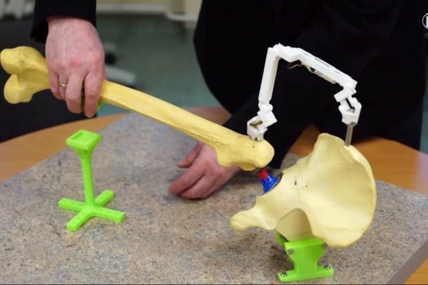 Łódź: innowacyjne urządzenie pomaga w trakcie wszczepiania endoprotezy