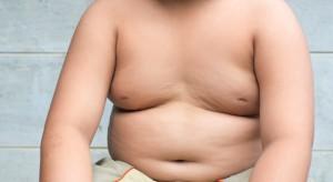 UNICEF: zła dieta zagraża zdrowiu dzieci; paradoks - jedne są otyłe, drugie niedożywione