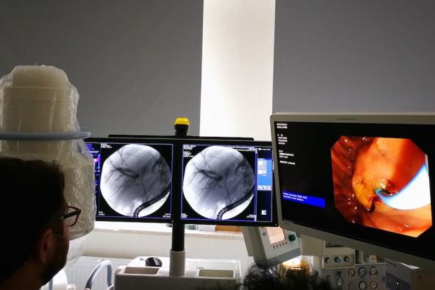 Endoluminalne RFA - nowa metoda w paliatywnym leczeniu raka dróg żółciowych