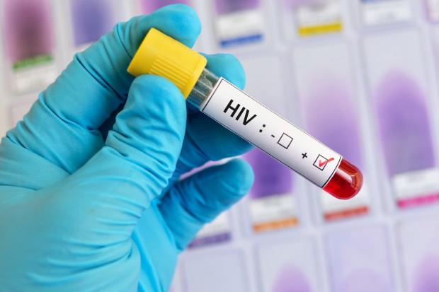 UNAIDS: maleje liczba zgonów w związku z AIDS