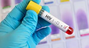 Drastyczny spadek liczby wykrywanych przypadków HIV. Przyczyną pandemia