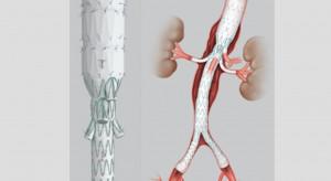 """Szczecin: """"rękawki"""" uratowały pacjenta z tętniakiem aorty piersiowo-brzusznej"""