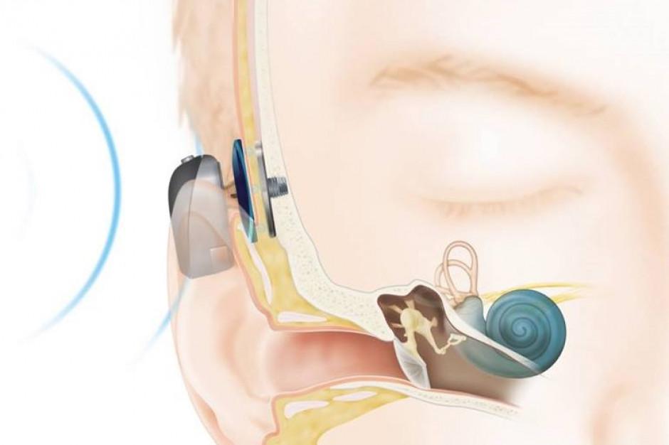 Pacjenci z implantami słuchowymi czekają na wymianę procesorów dźwięku. Co z dofinansowaniem?