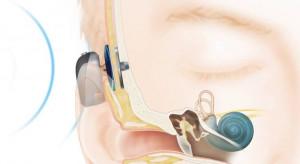 Olsztyn: szpital dziecięcy będzie wszczepiał implanty słuchowe zakotwiczone w kości