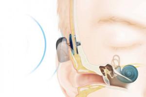 Olsztyn: w szpitalu dziecięcym będą wszczepiać implanty słuchowe