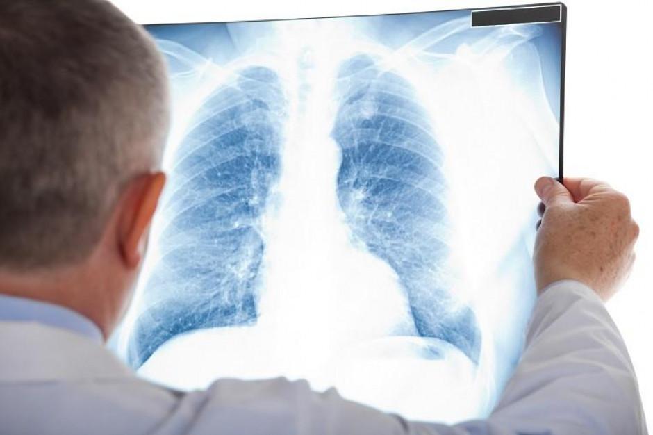 Polscy pneumonolodzy wreszcie z nową opcją terapeutyczną w leczeniu POChP