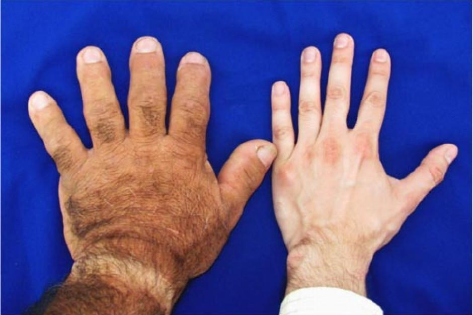 W Polsce akromegalię ma ponad 2 tys. osób. Co jest najgroźniejsze dla chorych?