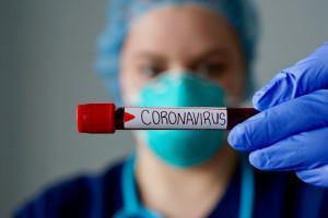 Kraków: wykonywanie testów na koronawirusa zostanie wstrzymane, brakuje odczynnika