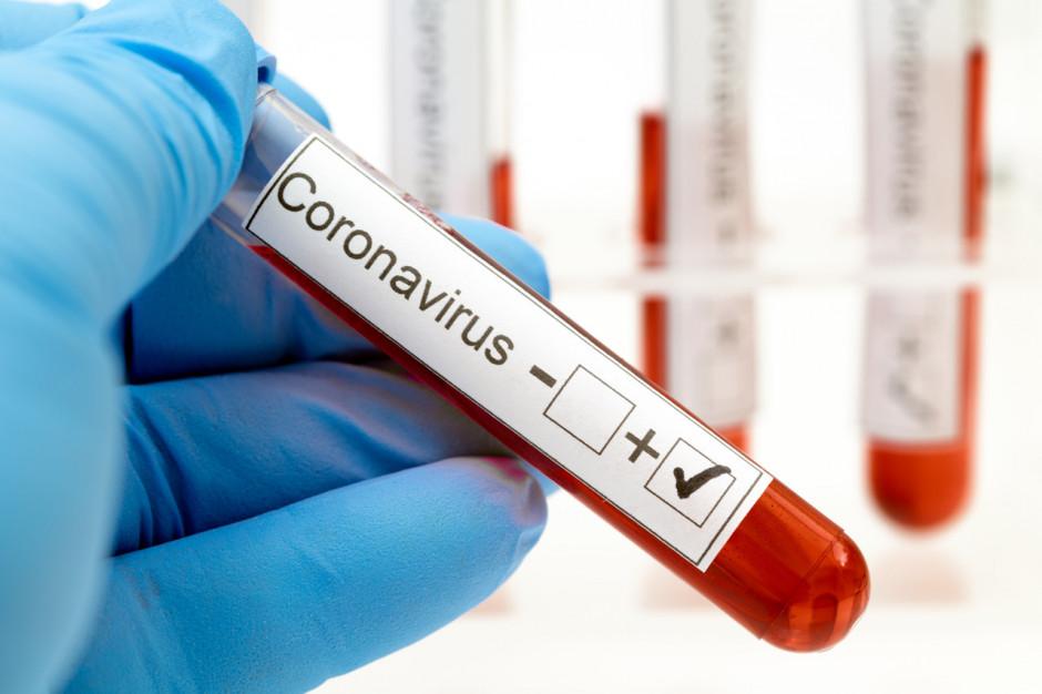 Rok z pandemią. Rzecznik MZ: dziennie jesteśmy w stanie wykonać ponad 2 tys. testów na obecność koronawirusa
