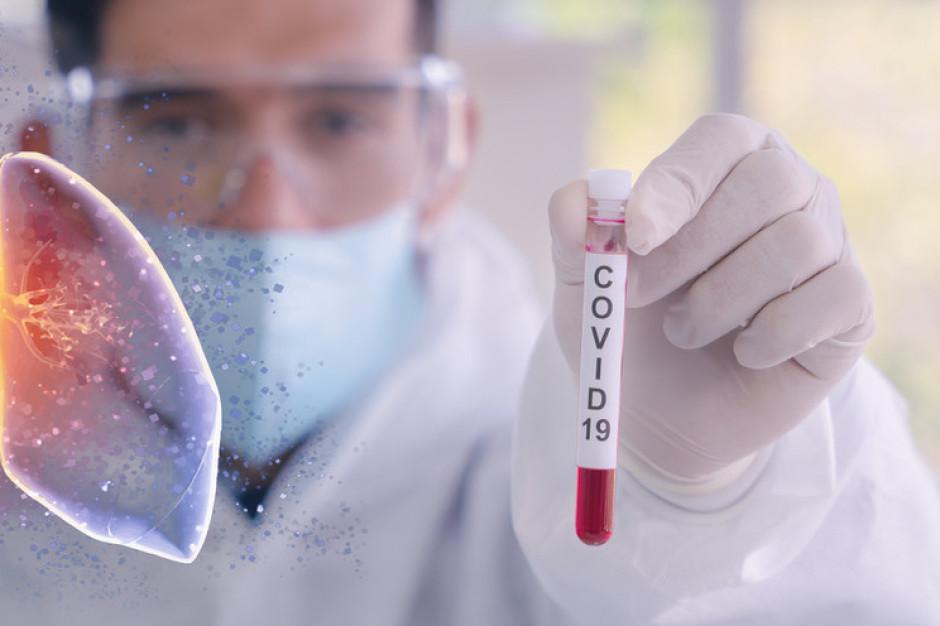 MZ: zwiększa się wydolność laboratoriów, obecnie to 16 tys. testów na dobę