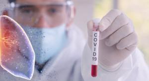 Ukraina: liczba zakażeń koronawirusem od początku pandemii przekroczyła już 200 tys.