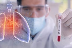 Częstochowa apeluje o laboratorium testujące pod kątem koronawirusa
