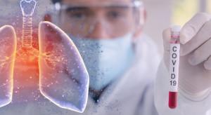 Warszawa: pacjent w Narodowym Instytucie Onkologii z potwierdzonym koronawirusem