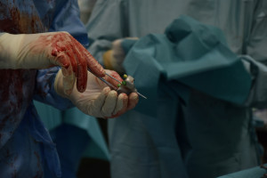 Poznań: innowacyjna endoprotezoplastyka stawu ramiennego z wykorzystaniem implantu custom made