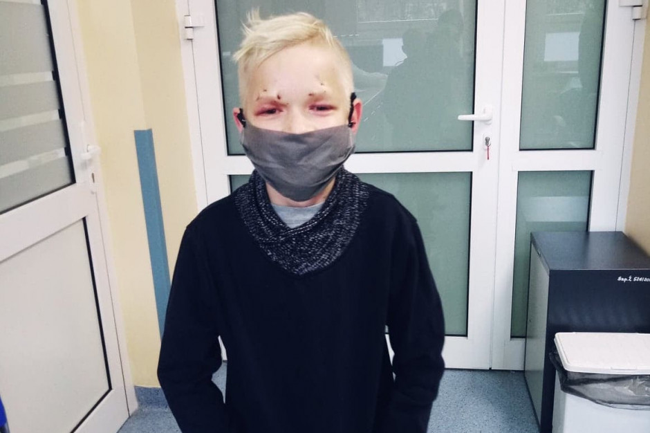 Kraków: lekarze w szpitalu im. Żeromskiego wykonali niecodzienny zabieg okulistyczny