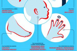 Akromegalię widać gołym okiem, ale jej rozpoznanie sprawia trudności