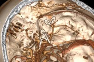 Wrocław: neurochirurdzy uratowali pacjentkę z pięcioma tętniakami