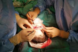 Chirurdzy z NCO w Gliwicach uratowali skalp kobiecie po wypadku w pracy. Skomplikowana operacja
