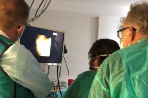 WUM: nowatorską metodą zabiegową rozkruszyli i usunęli złogi w wątrobie