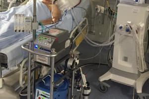 W Covid-19 ECMO jest dla niektórych pacjentów ostatnią szansą ratunku