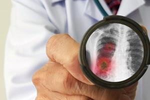 Są wyniki szczegółowych badań zmian płuc po ciężkim przejściu lub zgonie po Covid-19