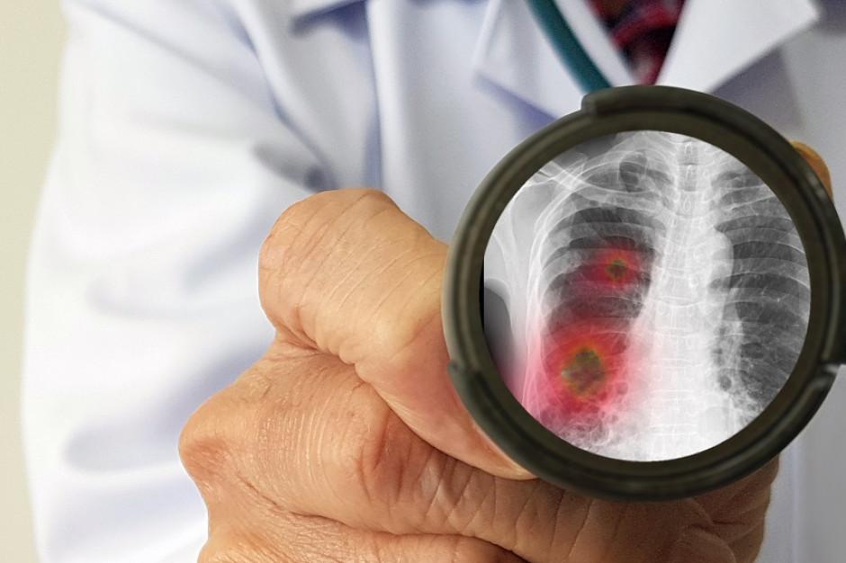 Naukowcy zbadali tkankę płuc zmarłych na Covid-19 - wskazują, dlaczego wirus tak szkodzi