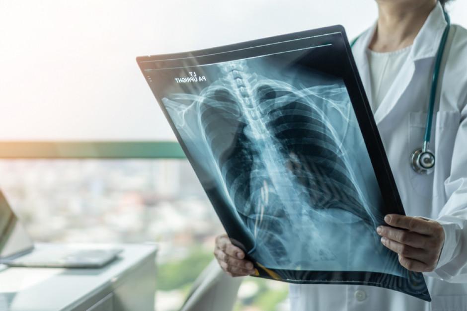 Ponad 30 proc. pacjentów rok po przebyciu COVID ma zmiany w płucach