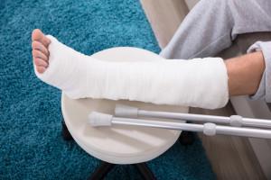 Wakacje i złamana ręka lub noga. Jak sobie poradzić?