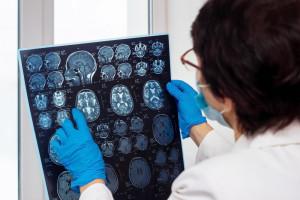 Ważne badanie szwedzkich naukowców. Nie zauważyli ciężkich zmian w mózgu po COVID-19
