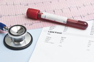 Hipercholesterolemia u pacjentów kardiologicznych będzie leczona skuteczniej. Co można zrobić lepiej?